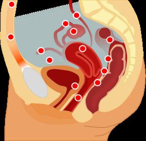 Common sites for endometriosis (en.wikipedia.org)