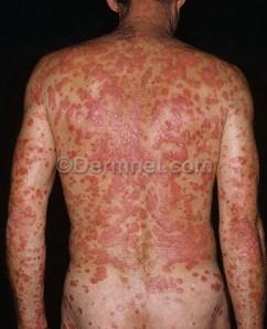 Psoriasis (www.dermnet.com)